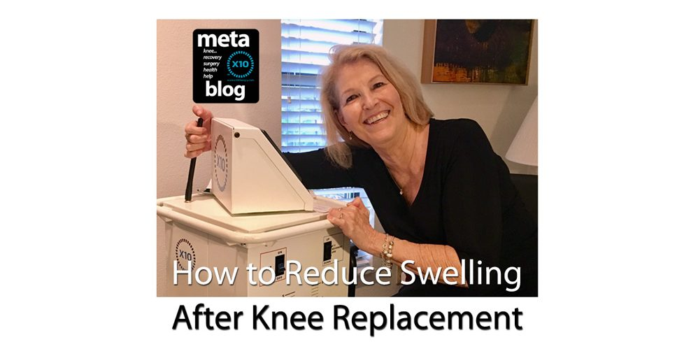 Reduce Swelling After Knee Replacement Surgery