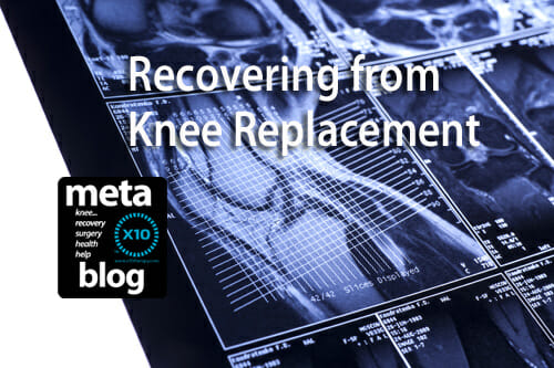 Recovering From Knee Replacement
