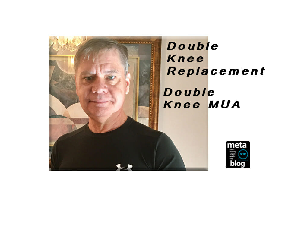 Double-Knee-Replacement-Double-MUA