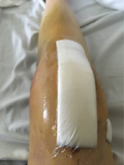 Knee Replacement Cautionary Tale