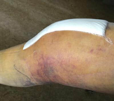 Knee Surgery Cautionary Tale