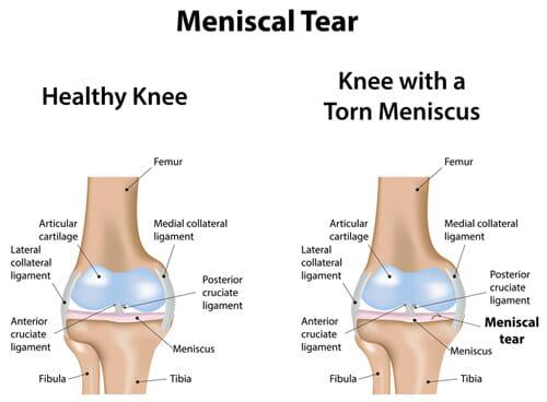 Meniscus-Tear-Medical-Drawing-op