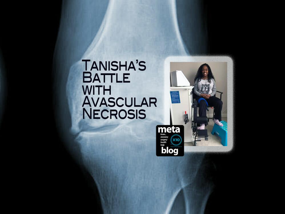 Tanisha's Battle with Avascular Necrosis