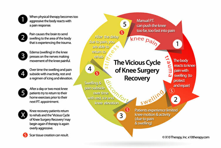 Vicious-Cycle-of-Knee-Surgery-Recovery