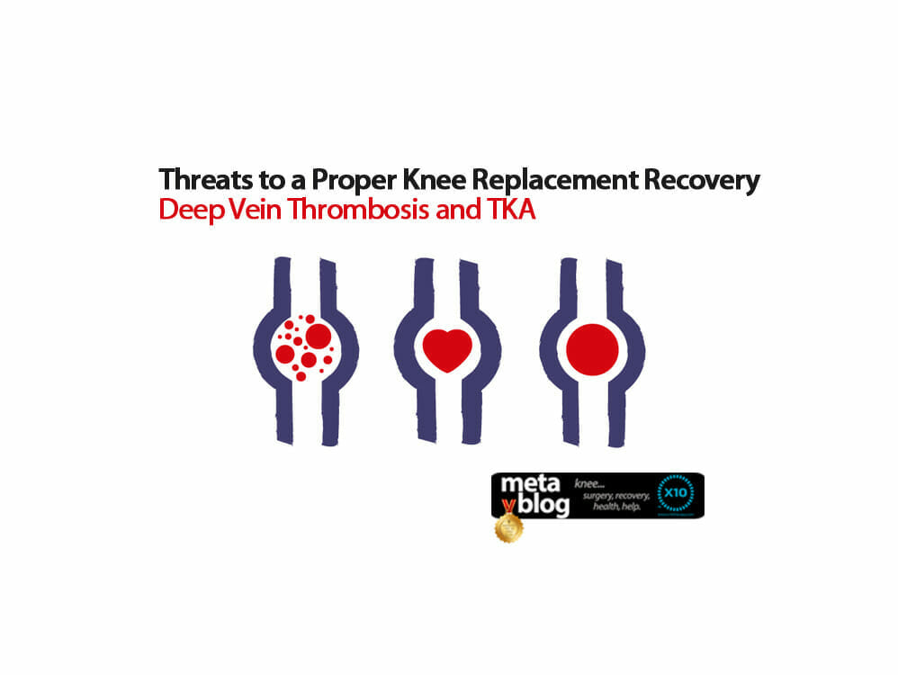 Deep Vein Thrombosis and TKA