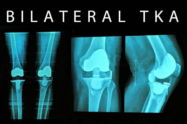 Bilateral Knee Replacement