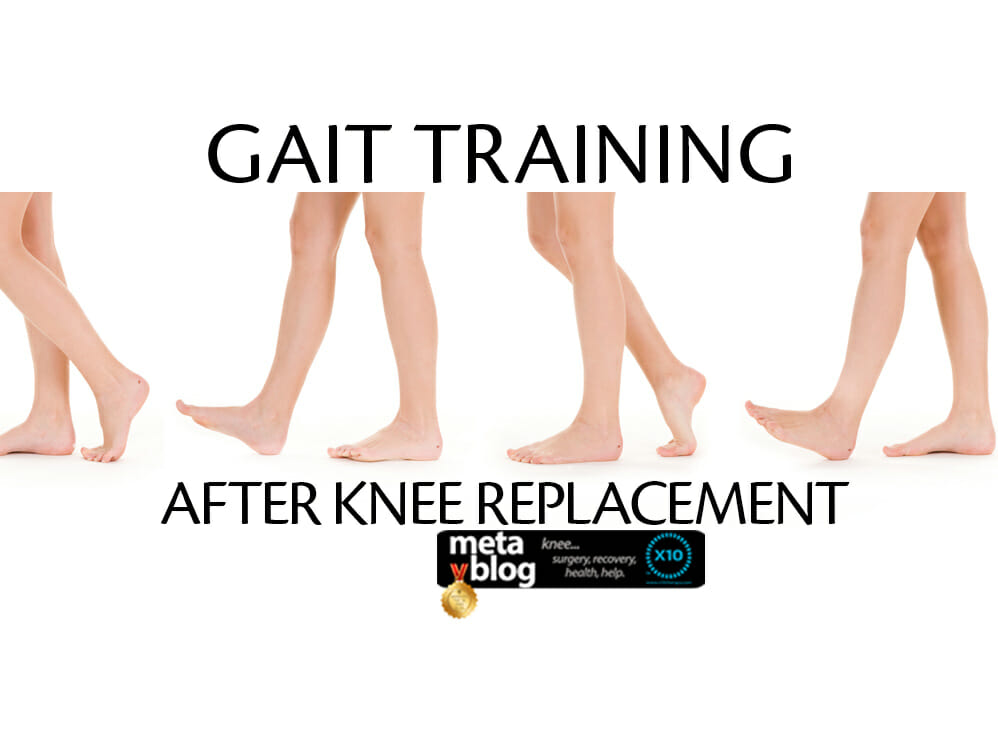 Gait Training After Knee Replacement