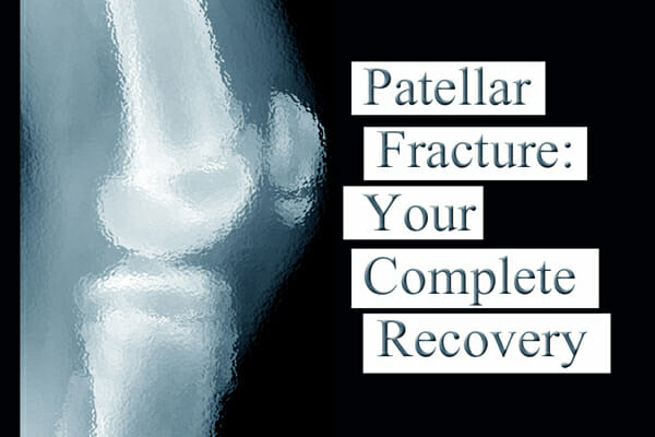 Patellar Fracture on Facebook