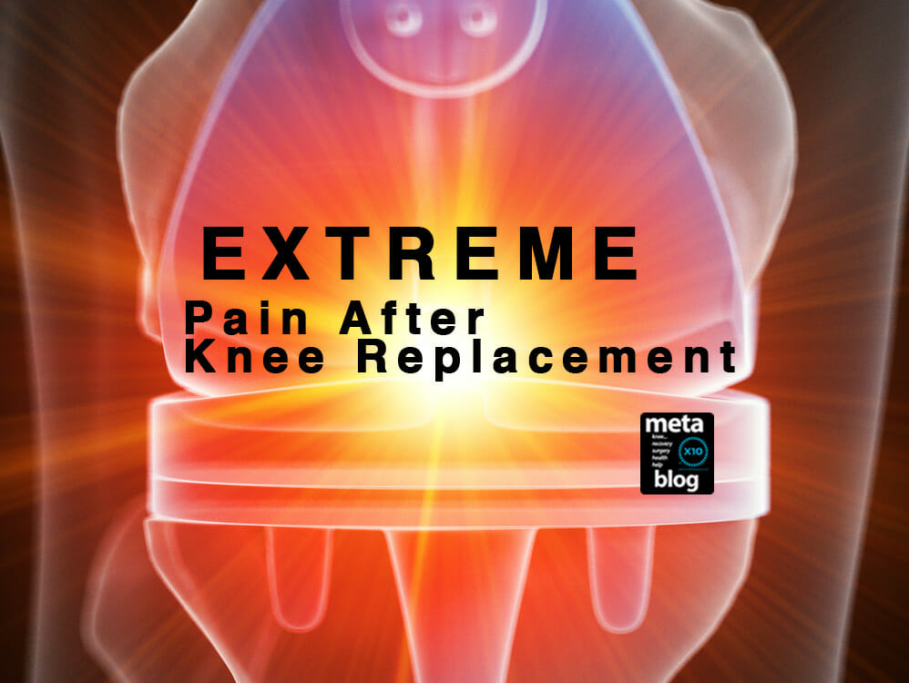 Extreme Pain After Total Knee Replacement