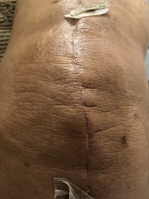 Knee Replacement 20 Days Later