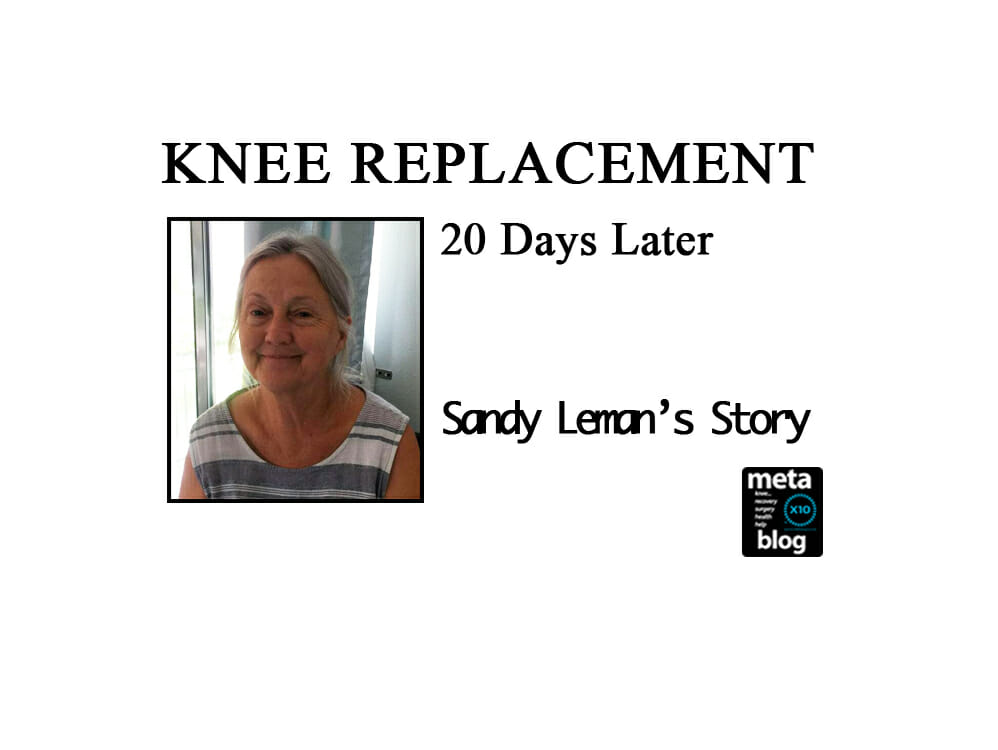 Sandy's-Knee-Replacmeent-20-Days-Later