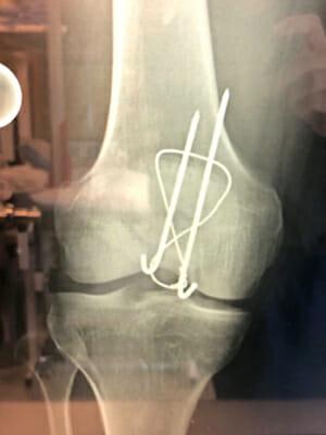 ORIF Knee Recovery