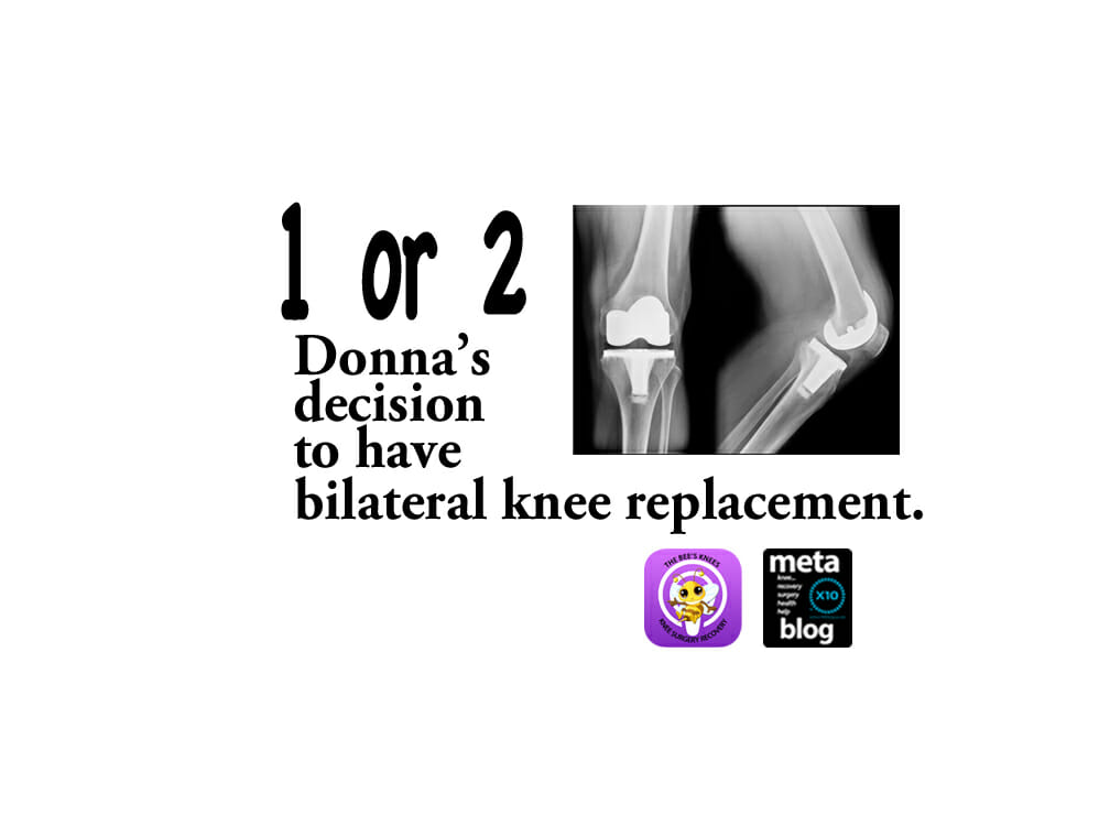 Deciding-on-Bilateral-Knee-Replacement