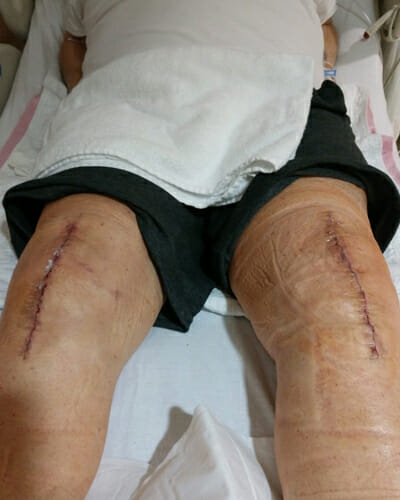 Perfect-Bilateral-Knee-Replacement-Surgery